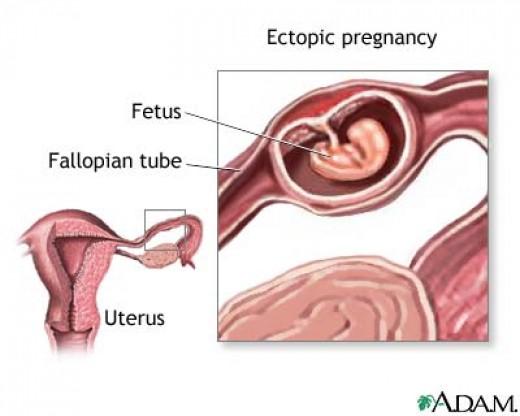 Причины внематочной беременности мужчина
