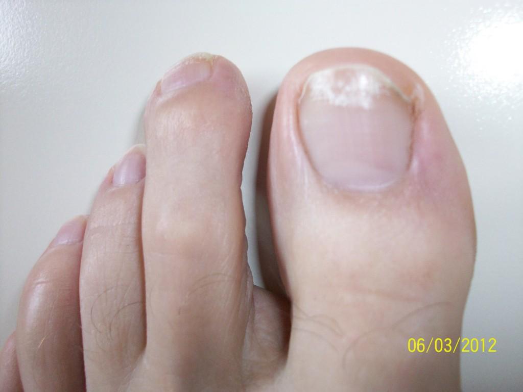 Грибок на ногтях на ногах как начинается