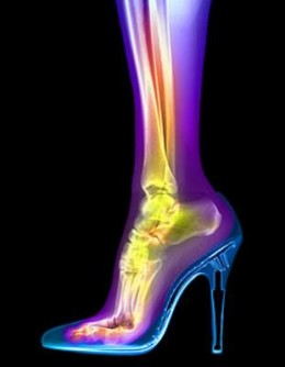 High Heels, Calluses and Blisters - How to Prevent Aching Feet
