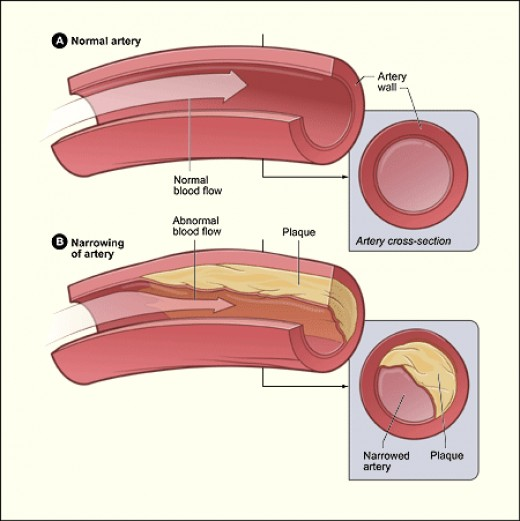 a closer look at the inner part of the coronary artery