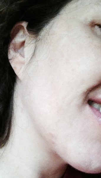 After 2 IPL treatments, the skin has an even tone and the darkest lentagos have faded.