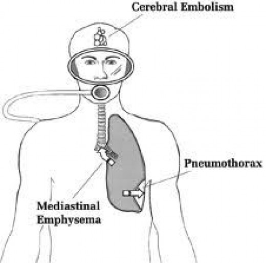arterial-gas-embolism.jpg