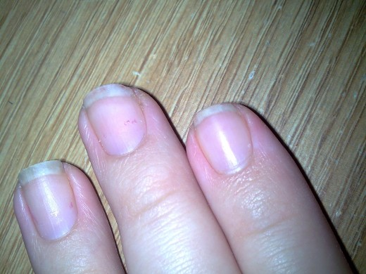 This is what my nails look like before I treat them.