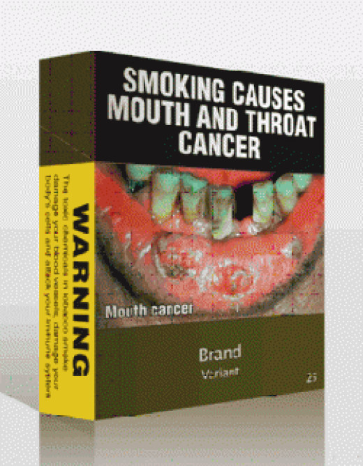 Mouth cancer image for cigarette packs