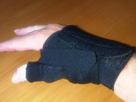 The Comfort Cool thumb splint.