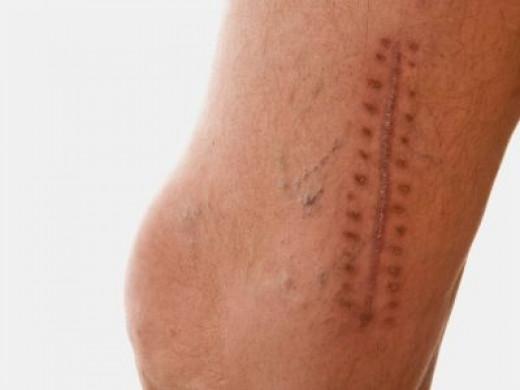 Varicose Vein Staple Scars