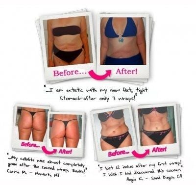 Body Wrap Before & After Photos