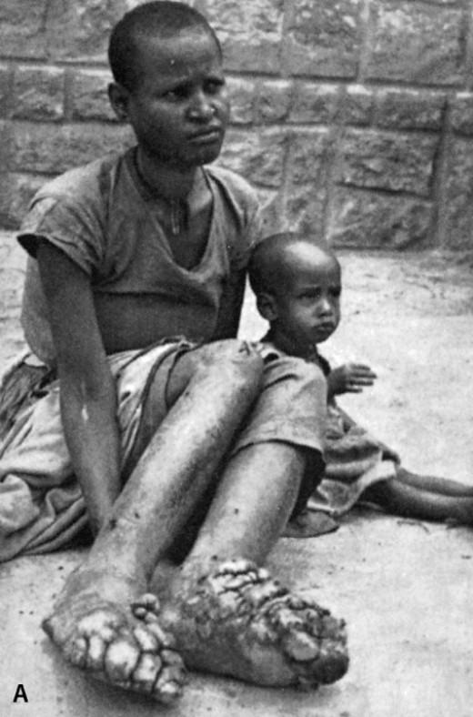 Podoconiosis: Tropical Foot Disease