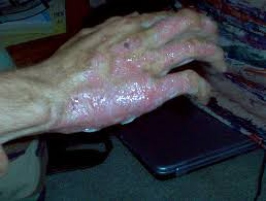 Severe burns often causes death or handicap for whole life