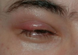 How to get rid of styes on bottom eyelid
