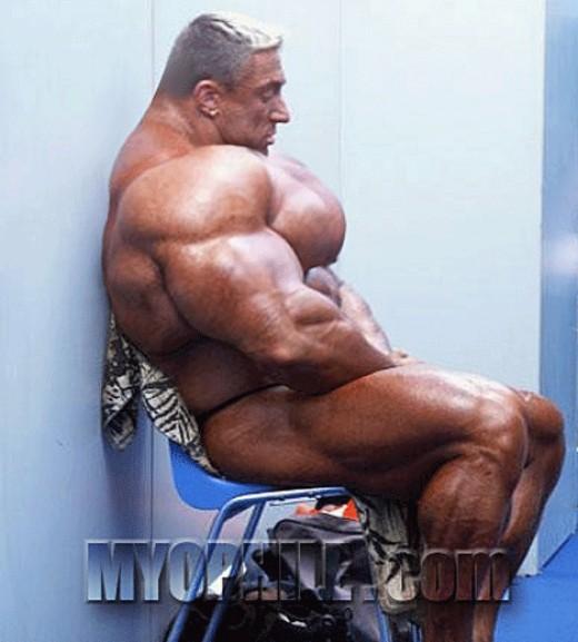 Bodybuilding supplement side effects