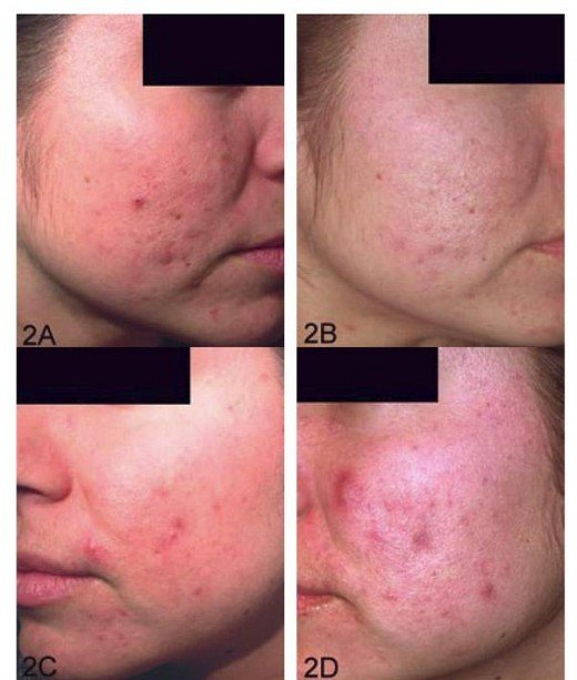 Acne Examples
