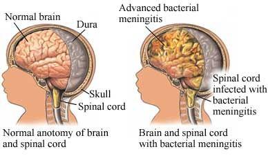How Meningitis effects the mind