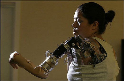 "A true ""Bionic Woman"" (Google images)"