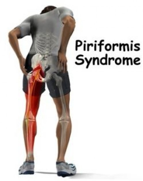 Piriformis Muscle - The Root Cause of Your Low Back and Hip Pain