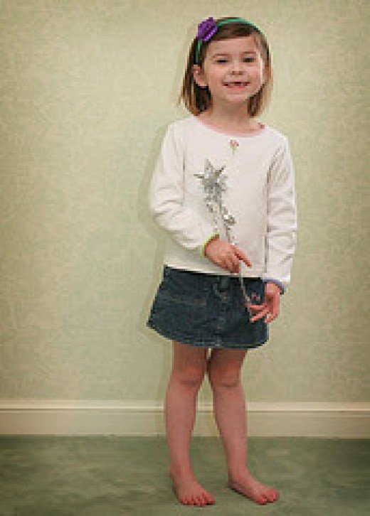 Child with knock knees.