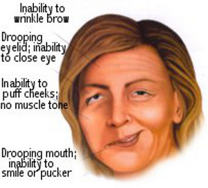 Symptoms of Bell's palsy