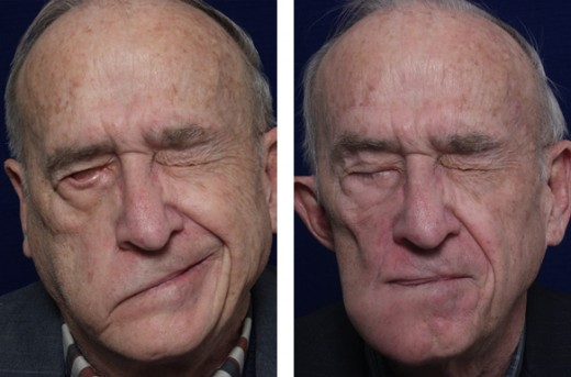 Older man with Bell's palsy