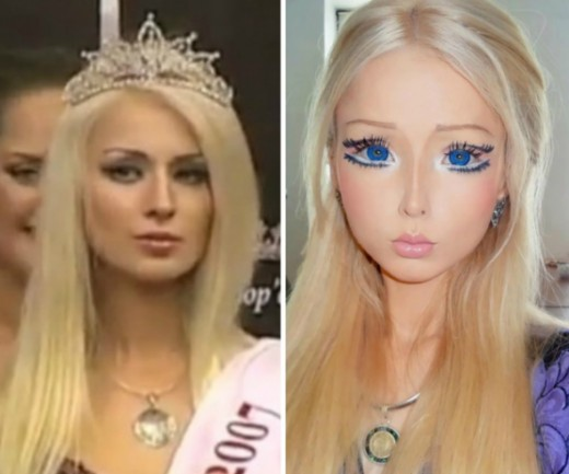 Photo of Valeria Lukyanova's  before and after Plastic Surgery
