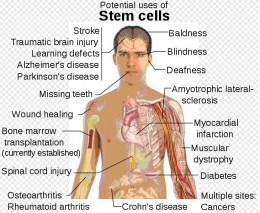 Currently the bone marrow transplantation is the only established use of stem cells. However the diagram shows the diseases and conditions where stem cell treatment is promising or emerging.