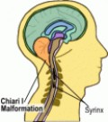 What Is Arnold Chiari Malformation?