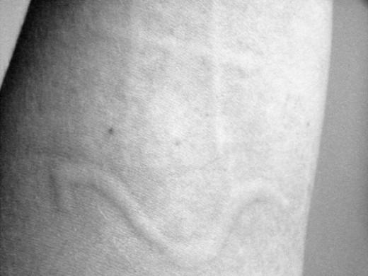 Dermatographic urticaria