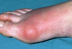 Gout Inflamation and Redness