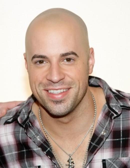 Going bald? Accept it!