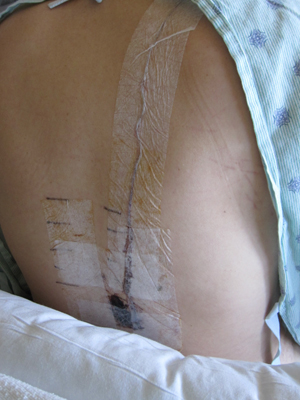 This is the epidural that had been feeding pain meds into my spine.