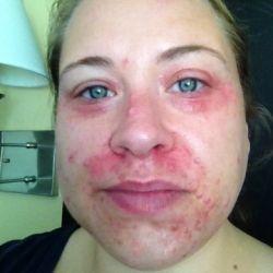 Peri oral dermatitis, chinese naked woman