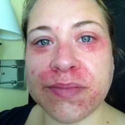 Perioral Dermatitis or Periorificial Dermatitis (POD)