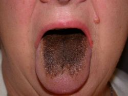 """Bad Breath Cures (Photo Compliments of """"knol.google.com"""""""