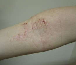 Atopy of the flexure crease of the elbow.