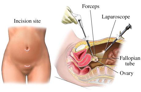 Laparoscopic tubaligation