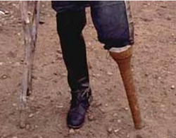 Civil War Soldier with Wooden Peg Prosthesis