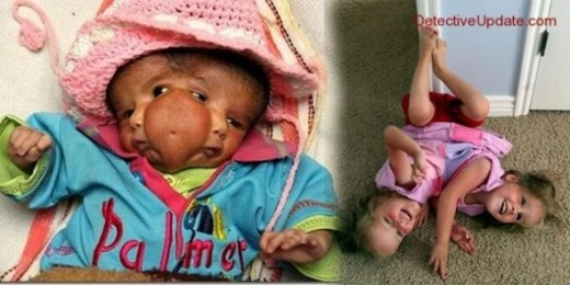 Conjoined twins Kendra and Maliyah Herrin on the right. They will love to live separate lives, though they love each other's company. Lali's case was more [a]typical, and was born with a rare condition called craniofacial duplication, where a single