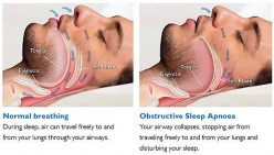 Medicine Allergy Can Cause Obstructive Sleep Apnea