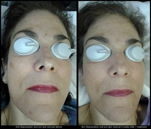 This is an example of skin rejuvenation with sunspot removal.  Skin rejuvenation and sun spot removal is done with the same laser used for tattoo removal, however the fluence level of the laser is set much lower for these treatment.  The photo on th