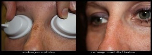 Sun spot removal before and about 1 month after 1 treatment.  Sun spots respond very well to laser treatment.