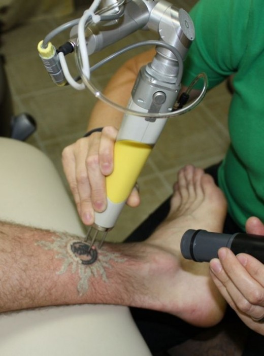 Professional black and teal tattoo during the first treatment.  The white coloring is called laser snow.  It is steam from the skin that rises to the surface.  The steam dissipates in as little as a few minutes to as many as 20 or 30.