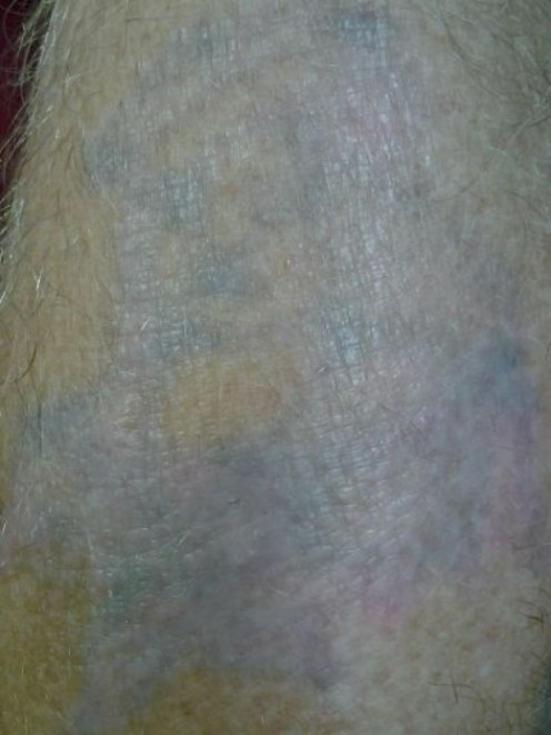 About 1 month after treatment 5, immediately before treatment 6
