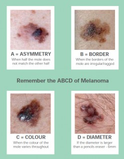 How to detect a skin cancer (Part - I) ?