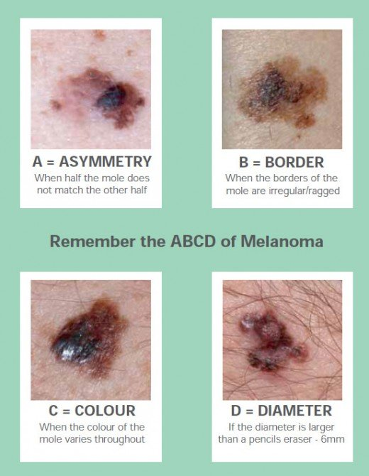 ABCD rule of melanoma