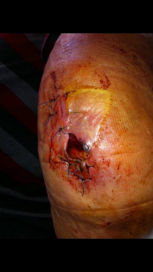 After the second operation, the wound has been cut further to remove the infection and left open to heal