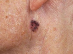 How To Detect A Skin Cancer (Part-II) ?