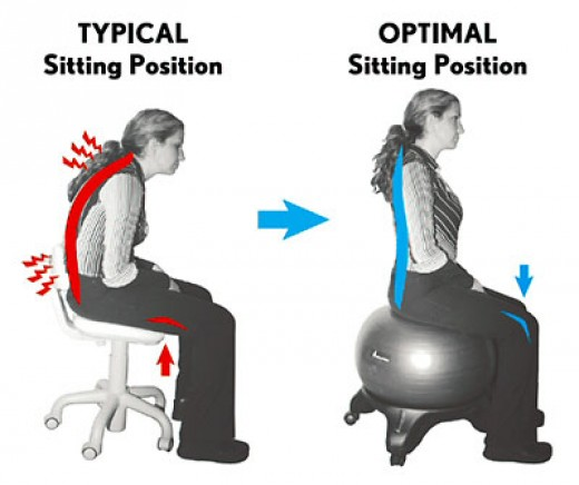 Good posture helps stroke patients in achieving good quality of life.