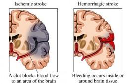 Brain ischemia versus brain hemorrhage