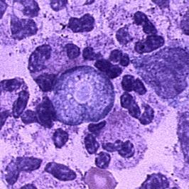 parasite in brain
