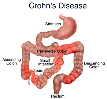 Image of the bowel.