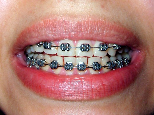 Braces restore spacing and correct the position of the teeth